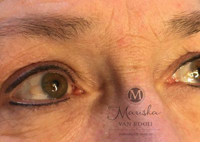 Resultaat na 1 behandeling eyeliner boven en onder